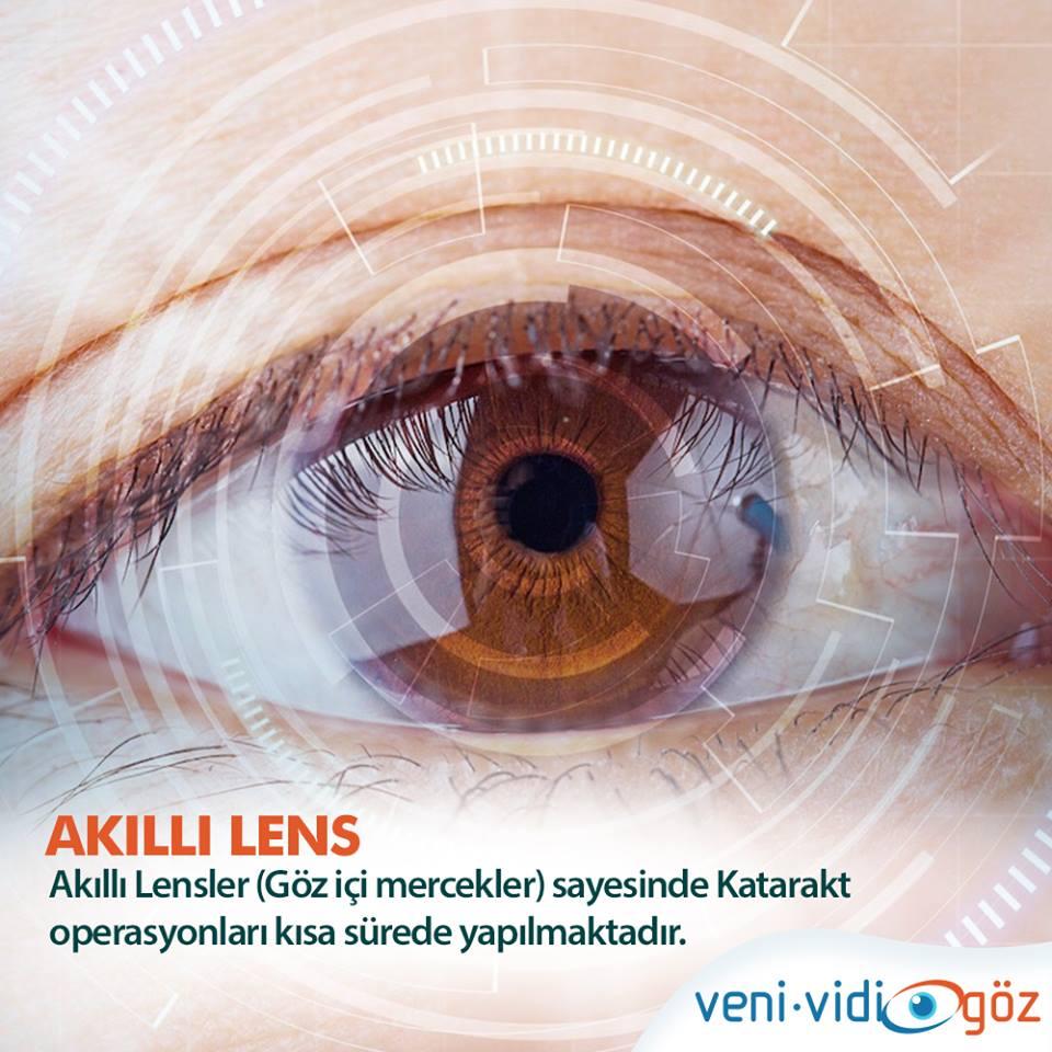 Akıllı Lens Ameliyatı Hakkında