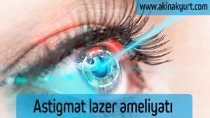 Astigmat lazer ameliyatı