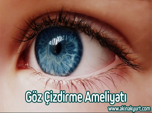 Göz Çizdirme Ameliyatı
