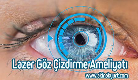 Lazer Göz Çizdirme Ameliyatı