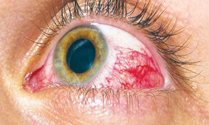 Diabetik Göz Hastalığı