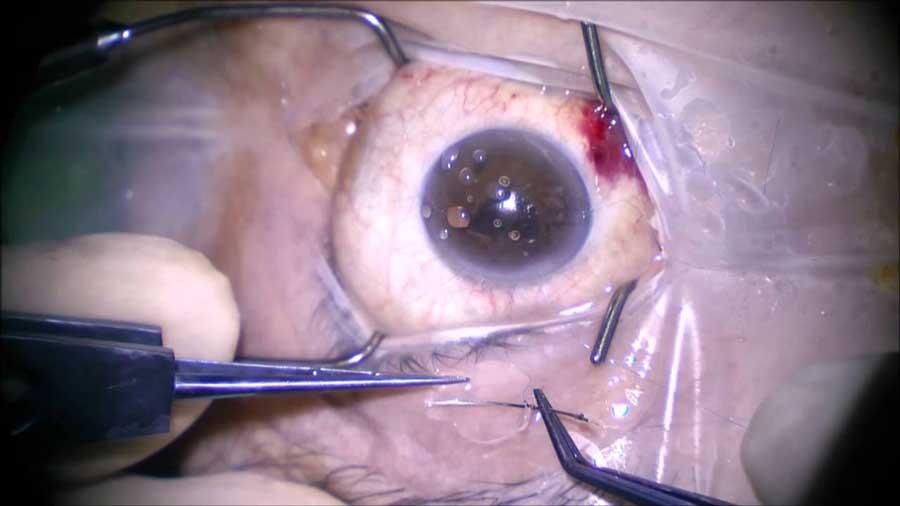 Göz Ameliyatı