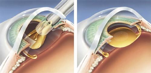 akıllı lens ameliyatı